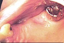 フラップレス手術手順.1