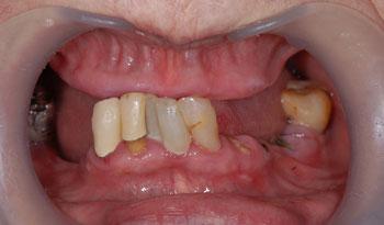 義歯による嘔吐反射を改善したオールオン4治療