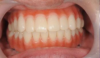 歯科恐怖症の方のオールオン4治療