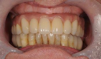 オールオン4による歯周病治療