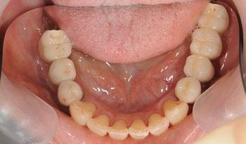 奥歯の審美的なインプラントと治療と補綴治療