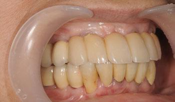 義歯が苦手な方のインプラント治療