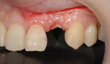 骨造成と歯肉移植を併用したインプラント治療