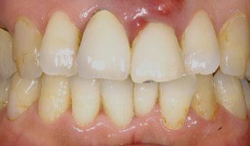 歯根破折によって抜歯した前歯のインプラント治療
