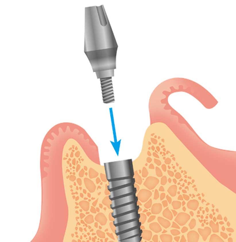 歯肉を少し切開して埋め込んだインプラントを露出させ、アバッドメントを装着します。